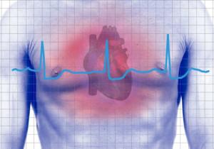 cardiovascular_ health