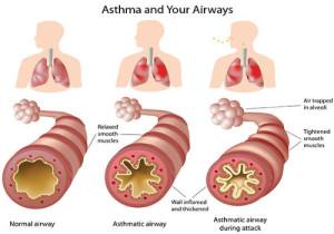 5-asthma